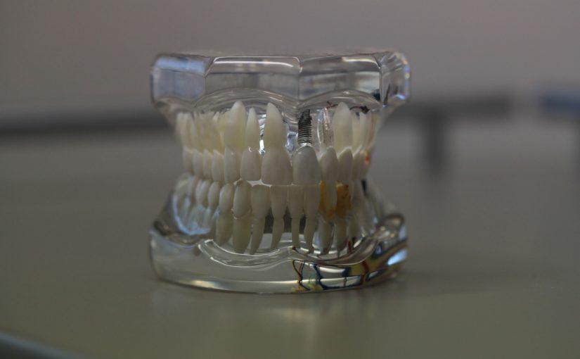 Zły sposób odżywiania się to większe braki w zębach a również ich utratę